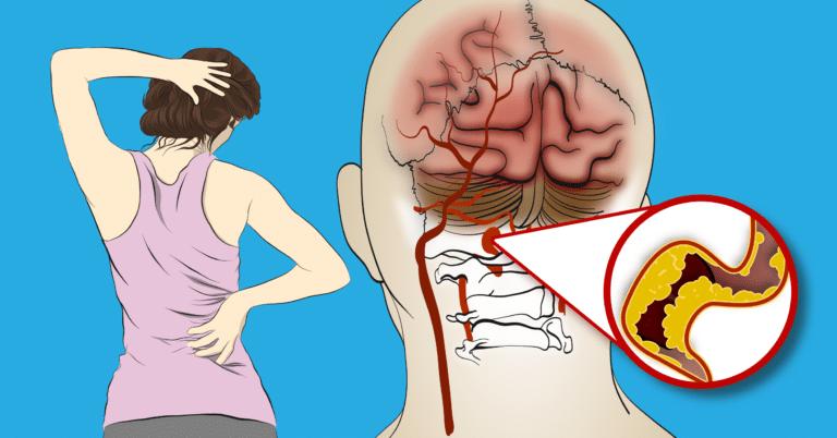 Photo of O corpo avisa as mulheres antes de um acidente vascular cerebral: 8 sinais de alerta que não devem ser ignorados