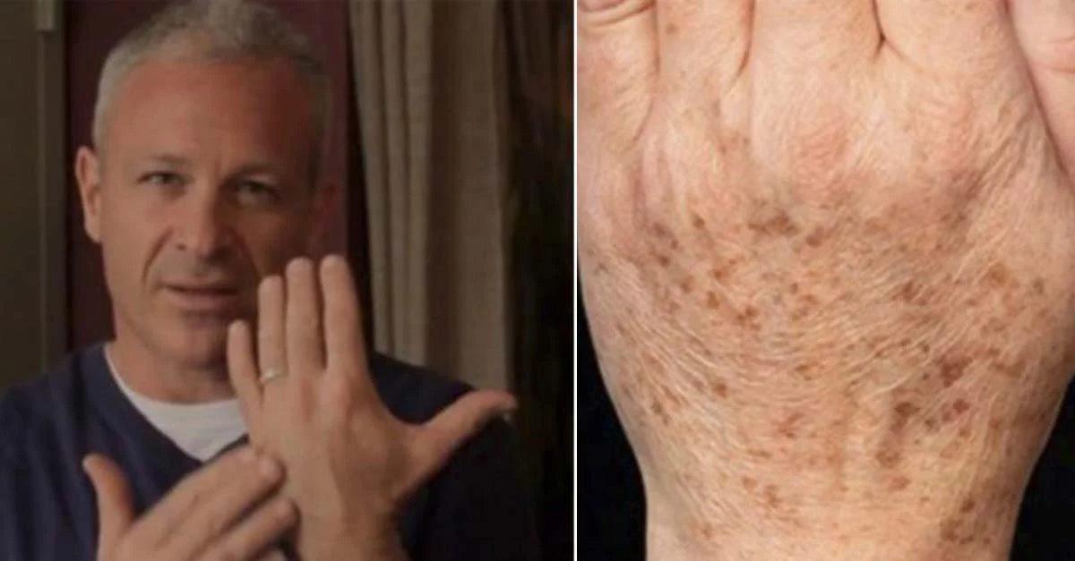 Photo of Médico americano recomenda 2 ingredientes naturais para remover rapidamente manchas pigmentadas da pele